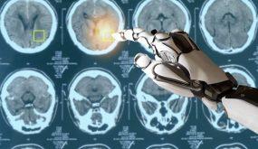 Turing AI Acceleration
